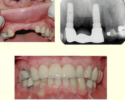 Implant Supported 3 Tooth Bridge